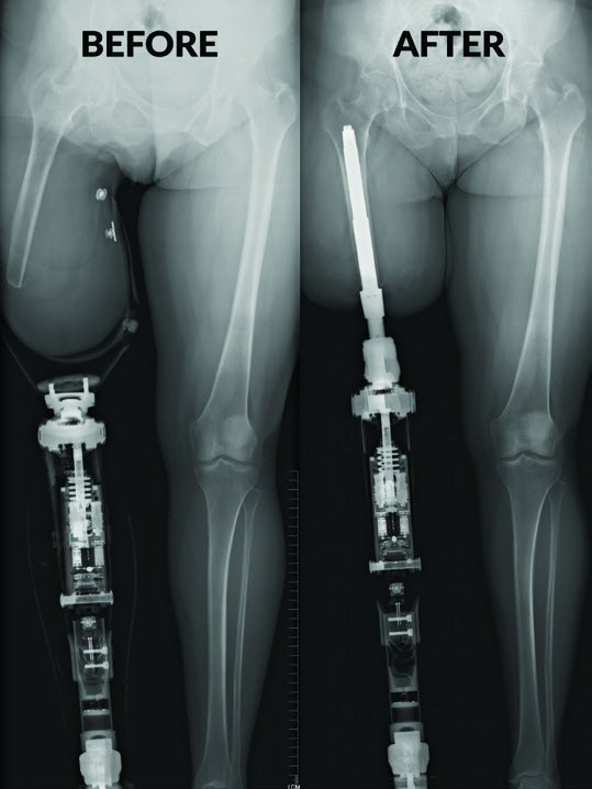 Osseointegration The Australian Experience After 500 Surgeries Issuu