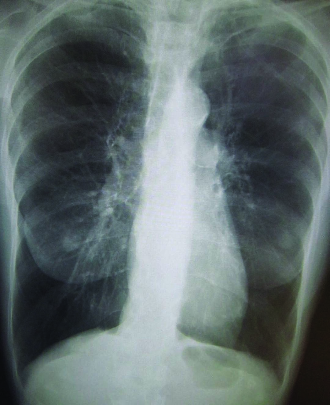 Page 28 of VA RESEARCH: RESPIRATORY HEALTH