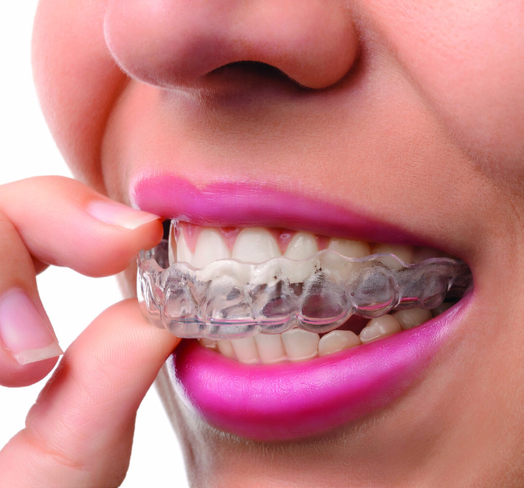 Page 10 of Invisalign VS. Braces—Which One Should You Choose