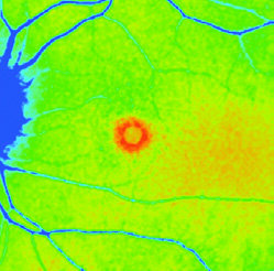 Page 14 of Exploring New Frontiers of Retinal Imaging with FLIO