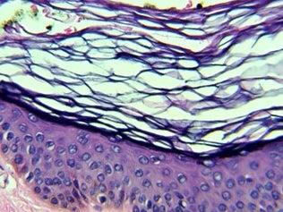 Page 82 of Papilomatosis reticulada y confluente con sobreposición de dermatosis terra firma-forme y acantosis nigricans en paciente pediátrico, reporte de un caso