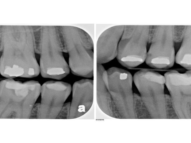 Page 10 of Just how safe are dental x-rays?