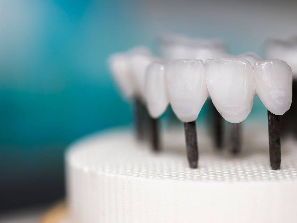 Page 10 of Introduction: Merging Well-Founded Principles With New Trends in Prosthodontics